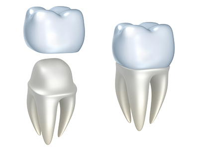 Dental Crowns at Portola Smiles