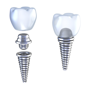 Dental Implants at Portola Smiles